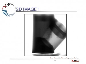 X Ray 2D