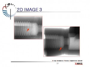 x ray 2d-3