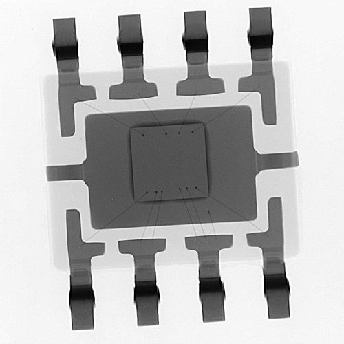 X Ray IC4